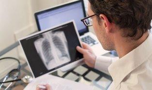 como-actua-el-tabaco-en-los-pulmones